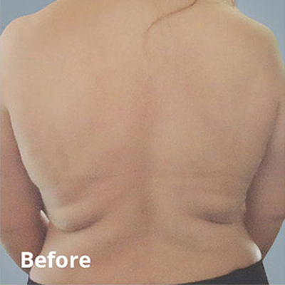 Before Body Contouring Services in Normal, IL